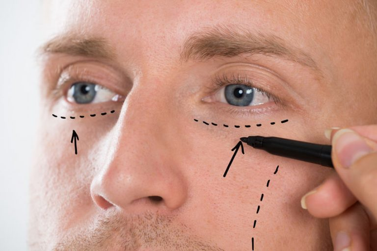 Alguien dibujando líneas de expresión en hombre