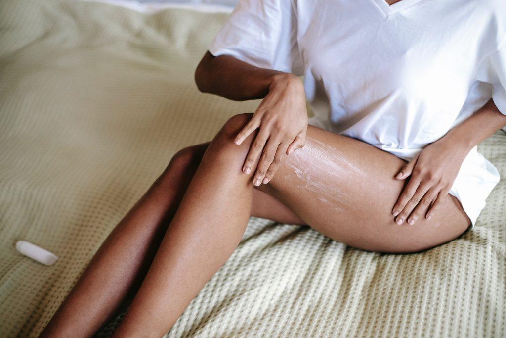 Las mujeres son las que más padecen de venas varicosas.