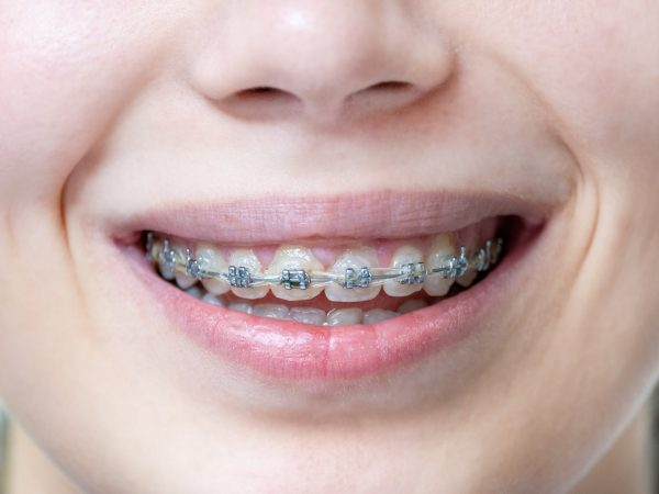 Braces for alignment of teeth on teeth at the woman. Medical dental concept. Close up